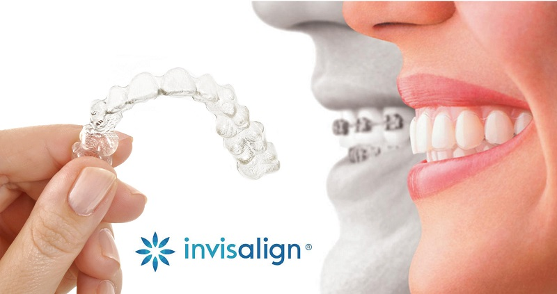 Different types of invisalign